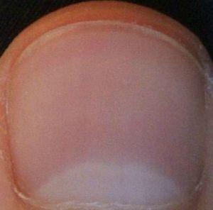 A Rule of Thumb?